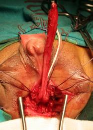 Vagina extradia via perineal