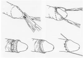 Esquema de la cirugía de la circuncisión