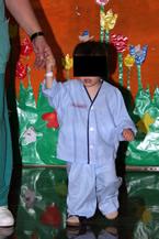 Tratamiento moderno del hipospadias imagen de doble pañal