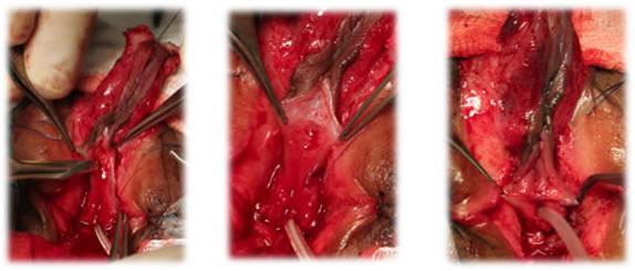 imagen uretroplastia en un caso de hermafroditismo