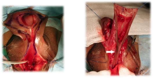 uretroplastia de Koyanagi en genitoplastia masculinízate