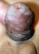 imagen de meatoestenosis tras cirugía de hipospadias