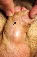 Fístula hipospadias puntiforme peneana