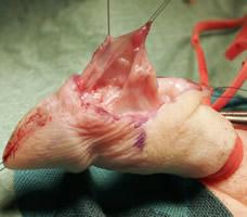 Disección de Colgajo Dartos para cubrir uretra