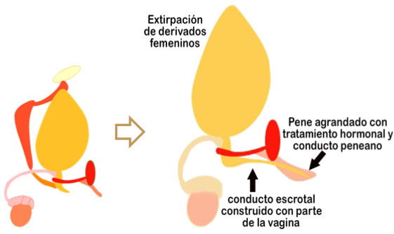 Esquema genitoplastia feminizante en un caso de hermafroditismo verdadero