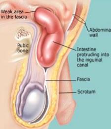 Esquema anatomía del canal inguinal con hernia