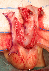 Técnica clásica de hipospadias de Onlay flap rectangular pediculado de mucosa prepucio