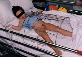 Imagen de niño en el tratamiento clásico del hipospadias