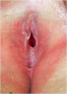 Imagen sinequias labios menores en niña
