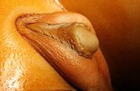 Imagen de pene con hipospadias y transposición penoescrotal